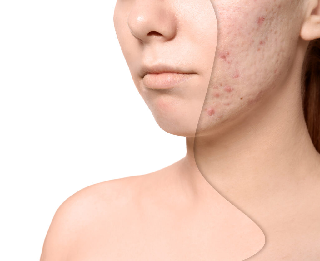 laser treatment for acne, SkinOne, Vancouver BC