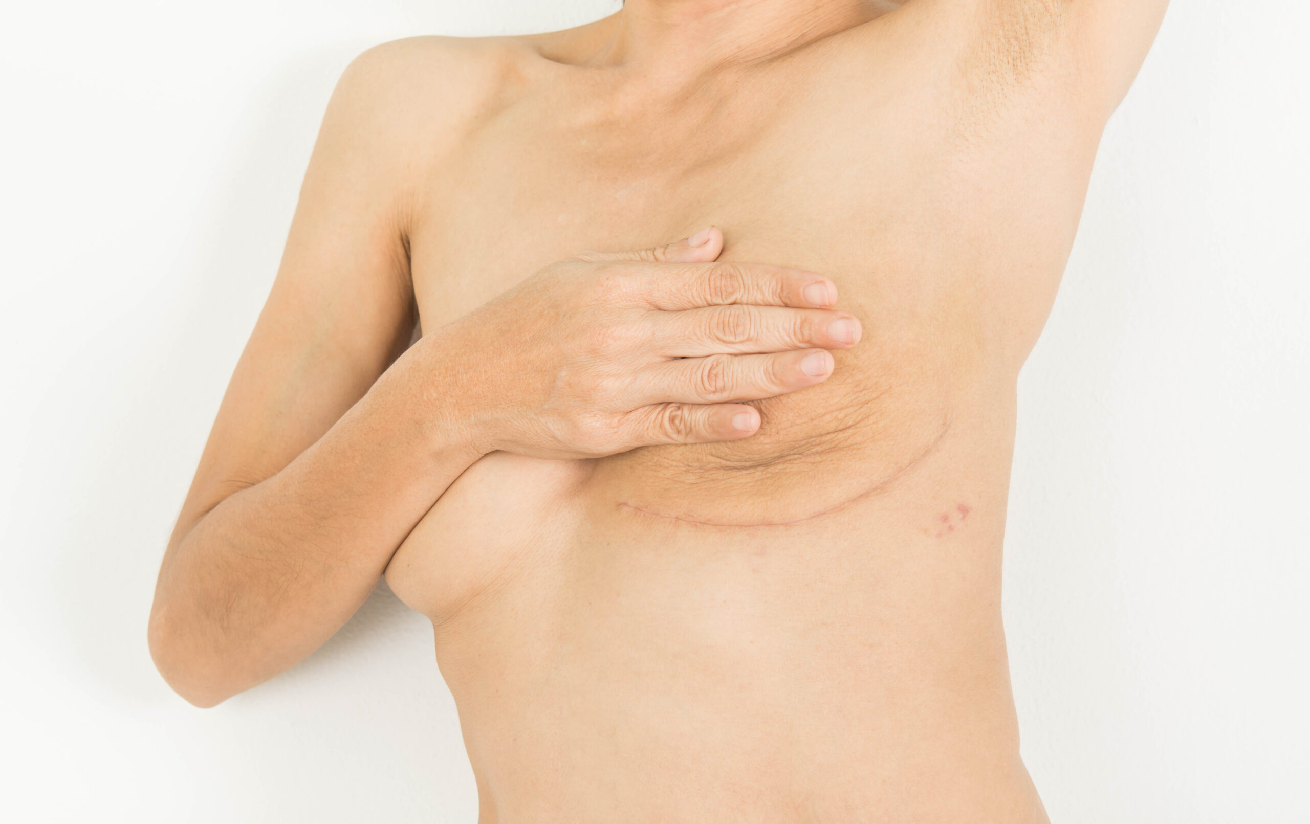breast reconstruction, plastic surgeons Vancouver, SkinOne