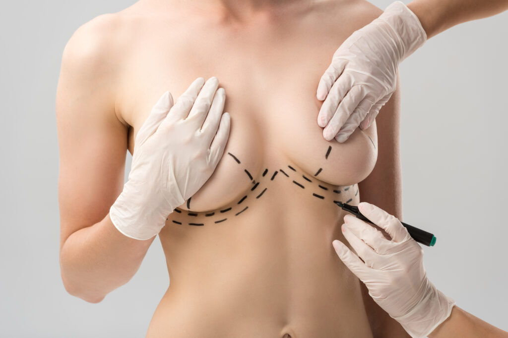 Breast Reduction, plastic surgeons Vancouver, SkinOne