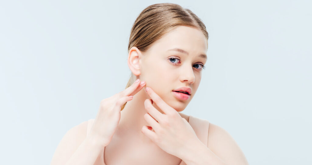 FOREVER CLEAR BBL ACNE, laser treatment for acne, SkinOne, Vancouver BC