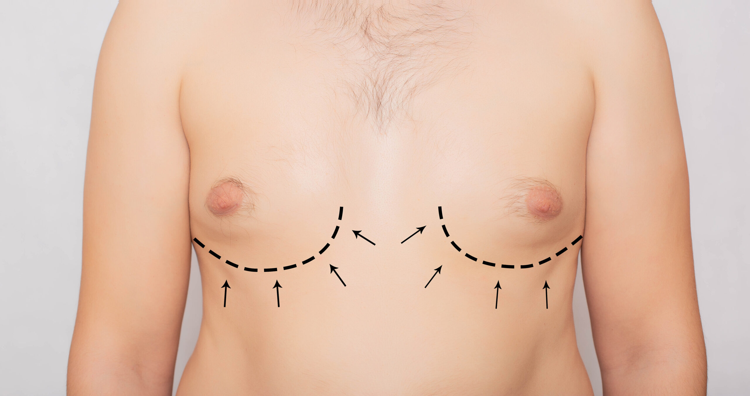gynecomastia, top surgery, SkinOne, Vancouver BC