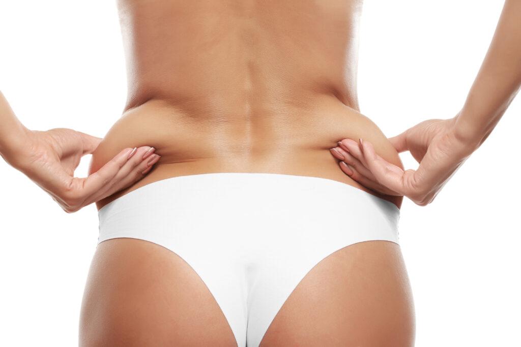 liposuction, plastic surgeons Vancouver, SkinOne
