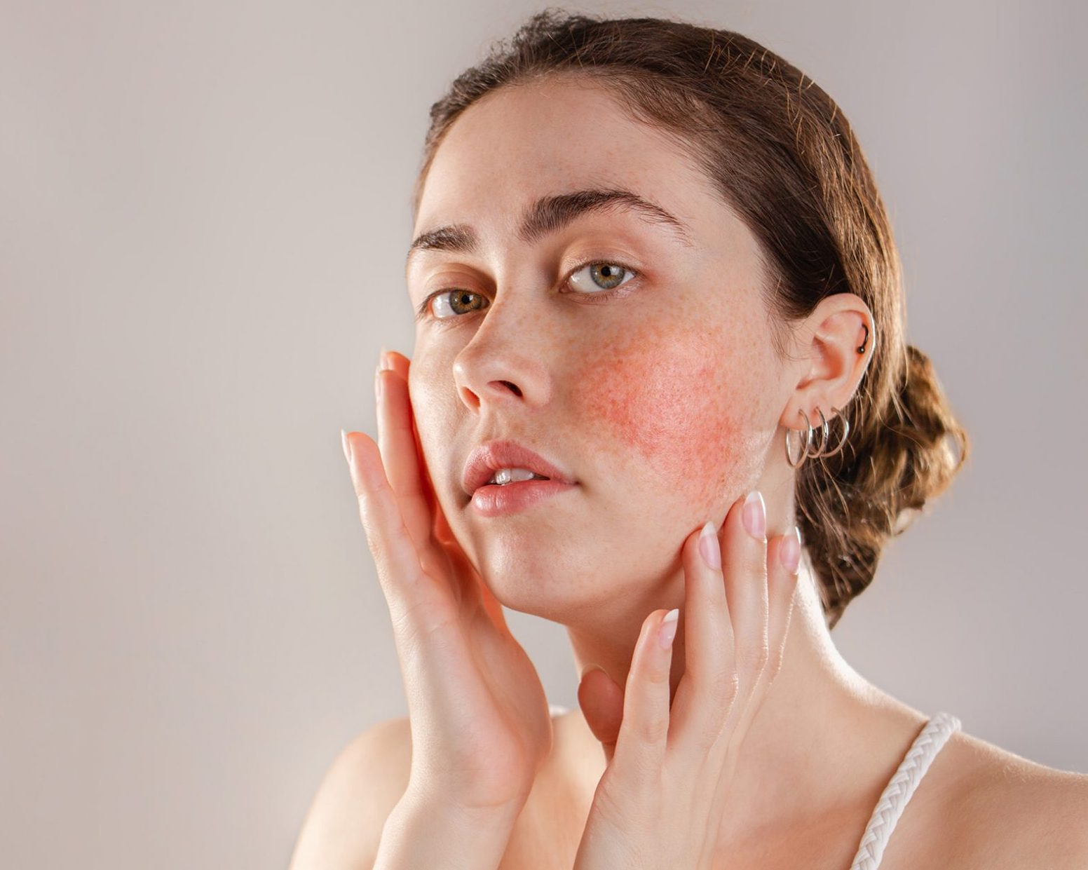 Rosacea and redness, medical aesthetics, SkinOne, Vancouver BC