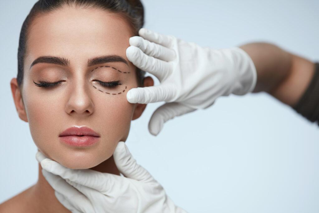 upper eyelids, plastic surgeons Vancouver, SkinOne