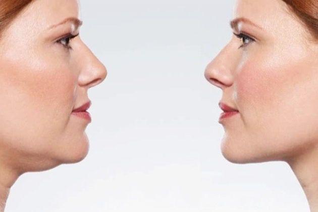 SkinOne, Double Chin, plastic surgeons Vancouver